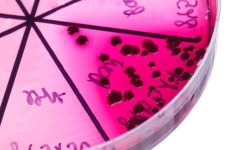 Petri dish close up. Bacteria culture. Stock Photo - 14249770