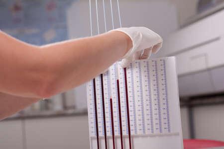 sedimentation: Woman doctor doing erythrocyte sedimentation rate test in laboratory Stock Photo