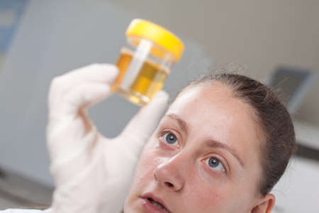 Woman examin urine container in laboratory environment