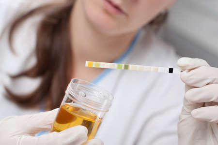 ph: Woman making urine test with ph material in laboratory