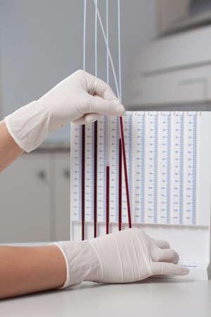 erythrocyte: Donna che fa il medico di prova la velocit? di sedimentazione degli eritrociti in laboratorio Archivio Fotografico