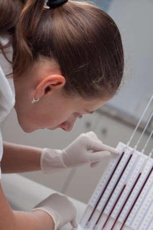 erythrocyte: Donna che fa il medico di prova la velocit� di sedimentazione degli eritrociti in laboratorio