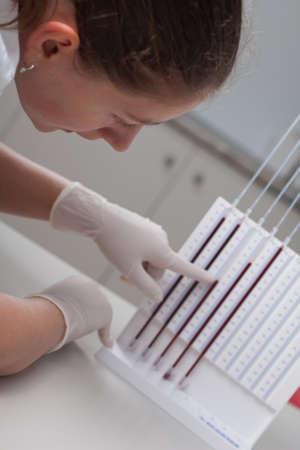 erythrocyte: Medico della donna facendo prova velocit� di sedimentazione eritrocitaria in laboratorio
