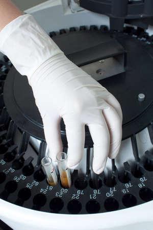analyzer: Woman loading samples in biochemical laboratory analyzer. Stock Photo