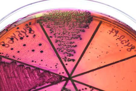 Petri dish close up. Bacteria culture. Stock Photo