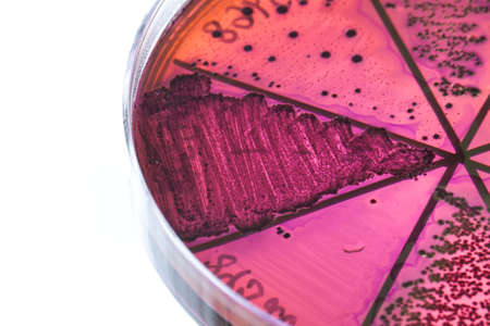 Petri dish close up. Bacteria culture. Stock Photo