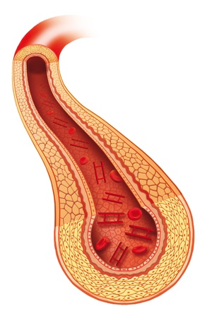 Artery insulin