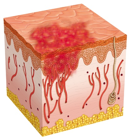 skin irritation Stock Photo - 9560982