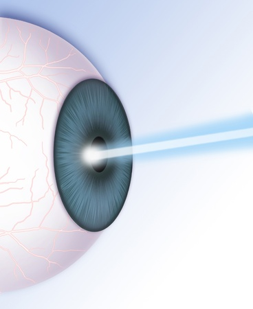 laser intervention in the pupil Stock Photo