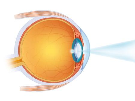 interventie: laser ingreep in het oog