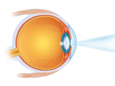 laser intervention in the eye Stock Photo - 10968155