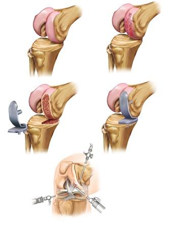 treatment of knee Stock Photo - 10968158