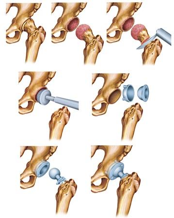 osteoarthritis: trattamento di hip Archivio Fotografico