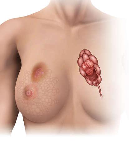 mujer: cancer de lobulos mamarios Stock Photo