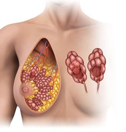 tumor de mamas Stock Photo