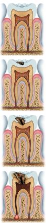 hygi�ne alimentaire: les stades de la carie dentaire