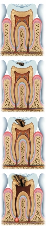 stages of tooth caries Banco de Imagens - 13873594