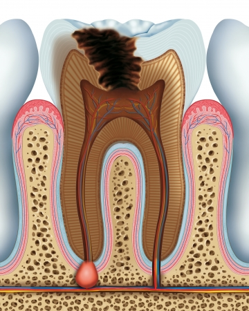 Advanced tooth caries photo