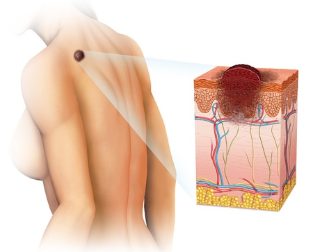 metastasis: skin cancer Stock Photo