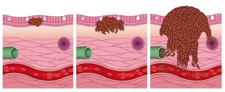 melanoma: stages of a cancer