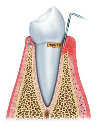 placa bacteriana: periodontitis de inicio Foto de archivo