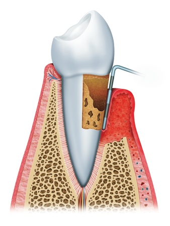 dental resin: advanced periodontitis Stock Photo