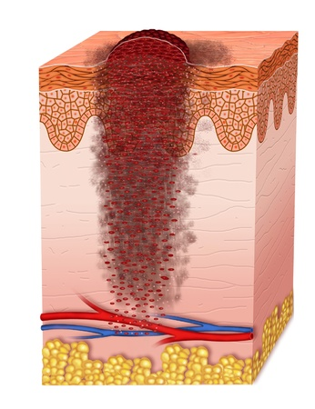 degeneration: Metastasis melanoma