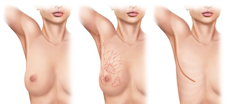 Mastectomy for breast