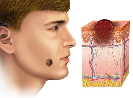 maligno: melanoma en la cara Foto de archivo