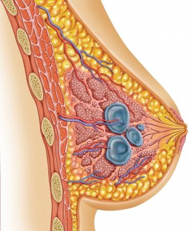 cancer de mama: la imagen de un quiste en el pecho de una mujer