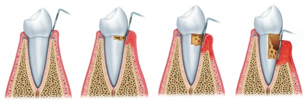 dental resin: sequence and evolution of periodontitis