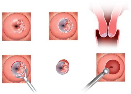 rak: sekwencja nowotworu szyjki macicy wytępienia Zdjęcie Seryjne