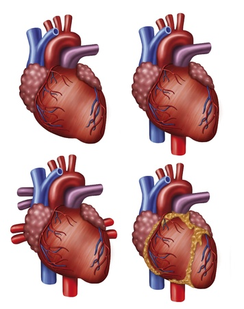 Illustration of four versions of the heart with aorta, vena cava and pulmonary