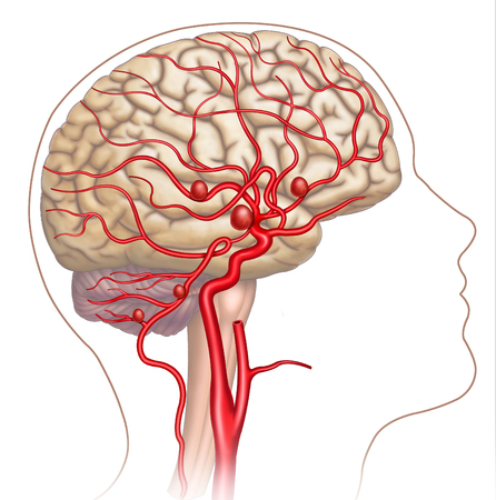 Schematic illustration composed by human head in which we can see the brain and the main arteries, in the podemo see the development of cerebral aneurysms. Stock Photo