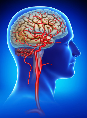Rendering human head on a blue background with a saccular aneurysminternal carotid artery Foto de archivo