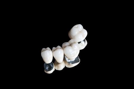 ceramics: Corone dentali Archivio Fotografico
