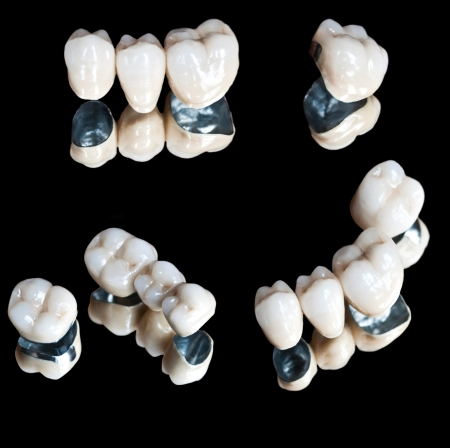 crowns: Ceramic teeth set