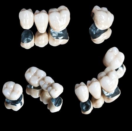 Ceramic teeth set