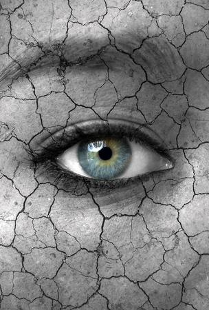 Dry skin concept photo