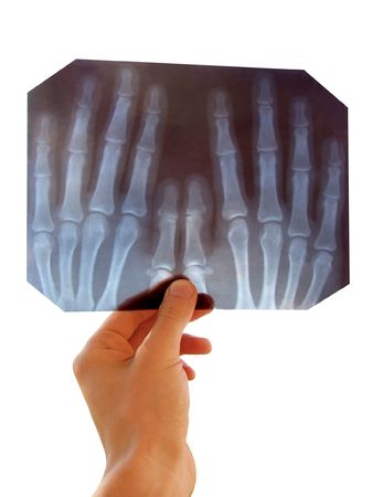 doctor inspects the radiograph of hands Stock Photo - 452849