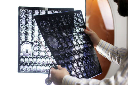 Doctor holding a picture of a brain MRI workflow