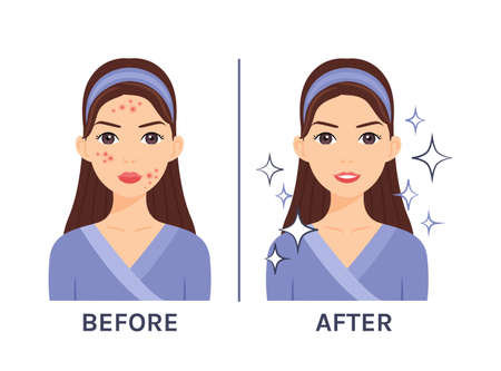 Cute brunette woman with pimples on her face. Acne Treatment. Before after. Problematic and clear skin. Healthy happy lady. Flat cartoon color style. White background. Vector stock illustration. Vecteurs