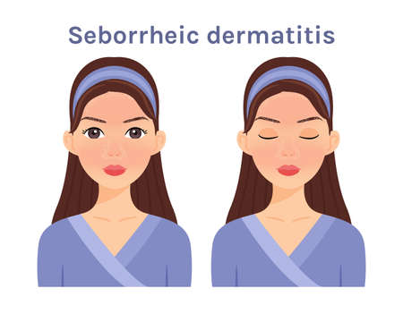 Seborrheic dermatitis. Isolated Beautiful Brunette woman. Cute face. Skin disease. Woman with open eyes and closed. White background. Color Flat cartoon illustration. Vector stock illustration.