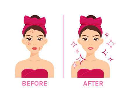 Lady with Problem Skin. Treatment of Acne, Pimples. Before After. Woman in Towel and with Bow on Head. Female Happy Character with Clean Face. White background. Illustration for Beauty Medical design.
