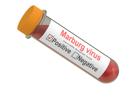 quarantine: Test tube with blood sample positive Marburg virus, 3D rendering