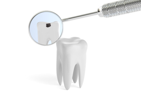 carver: Dental concept, mouth mirror and bad tooth, 3D rendering Stock Photo