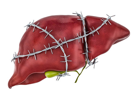 Liver Pain concept. Human liver with barbed wire. 3D rendering isolated on white background