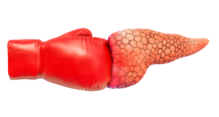 Pancreatic pain. Pancreas with boxing glove. 3D rendering isolated on white background
