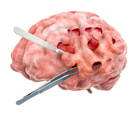 Brain surgery concept. 3D rendering isolated on white background