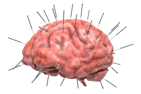 Human brain with acupuncture needles. Acupuncture treatment concept, 3D rendering isolated on white background